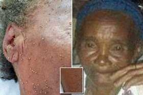 Photos; Grandmother Dies After Being Stung 500 Times By A Swarm Of Bees (Viewers Discretion)